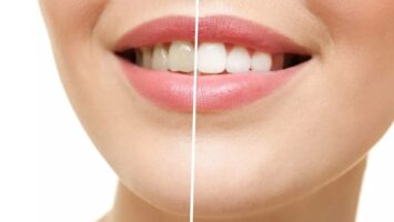 Teeth Whitening and it's Pros and Cons